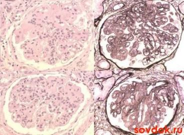 норма и патология почечных клубочков при волчаночном нефрите