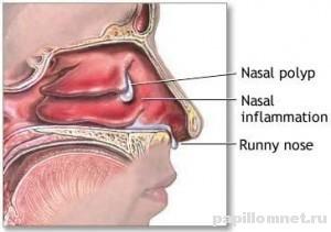 Фото схемы появления полипа в носу