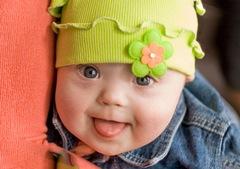 Признаки синдрома Дауна у новорожденных