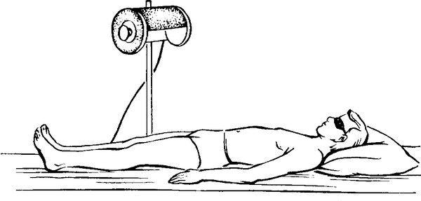 облучение тела аппаратное