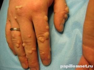 Изображение руки на которой совершался обряд избавления от бородавок путем заговора