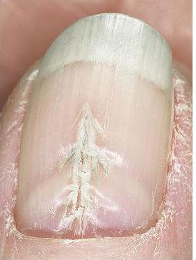 продольная борозда на ногте