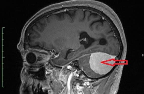 Опухоль мозжечка