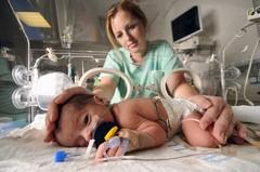 Недоношенные новорожденные