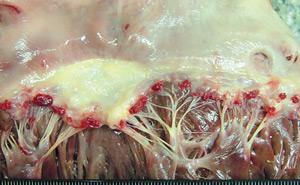 Так выглядит острый эндокардит
