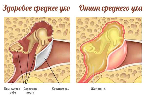 Если уши заложило как лечить в домашних условиях