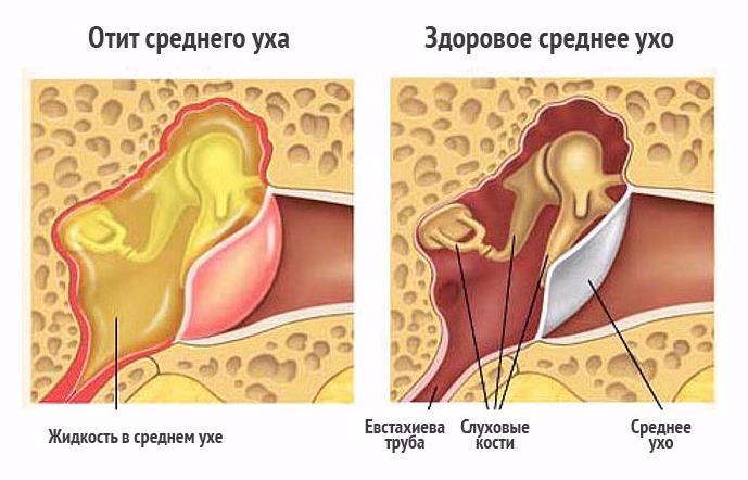 Отит - симптомы и причины, лечение в домашних условиях