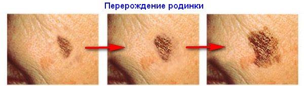 перерождение образования на коже