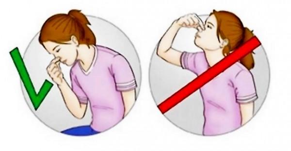 Первая помощь при носовых кровотечениях