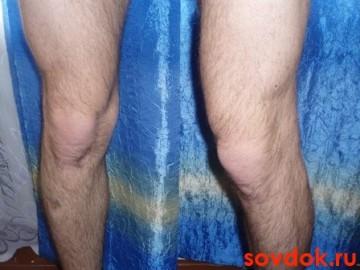 первичный  остоеоартроз  коленных  суставов