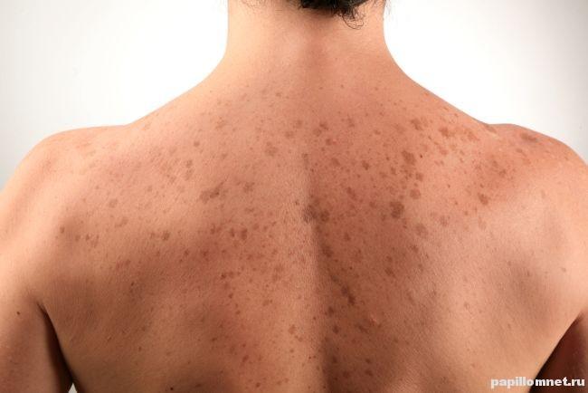 Появление пигментных пятен на спине человека