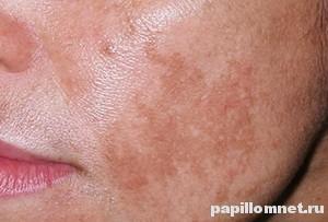 Проявления пигментных пятен на лице во время беременности