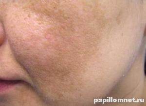 Небольшие пигментные пятна на коже лица человека