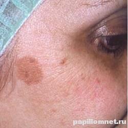 Фото пигментных пятен на лице женщины