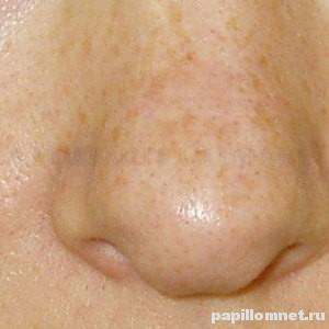 Фото пигментных пятен на коже носа человека