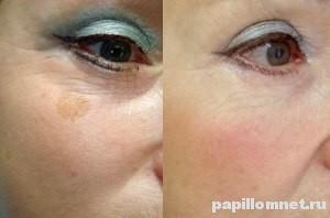 Пигментное пятно после процедуры лечения народными средствами