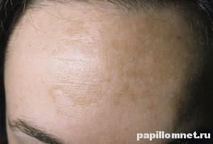 Пигментация кожи на лбу девушки