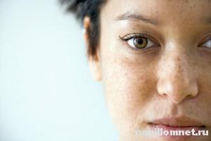 Лицо девушки с пигментными пятнами