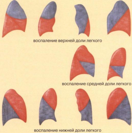 различные типы пневмонии
