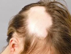 Сильно выпадают волосы у женщин