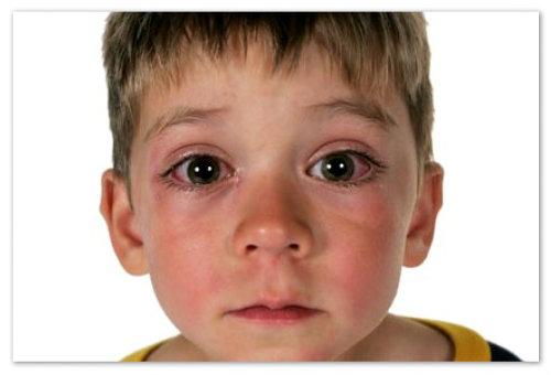 Отек глаз у ребенка