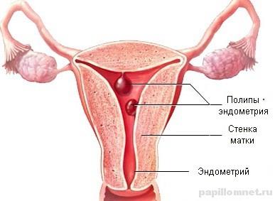 Фото матки со схемой расположения полипа эндометрия