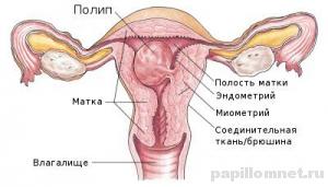 Схема матки с возможным размещением полипа