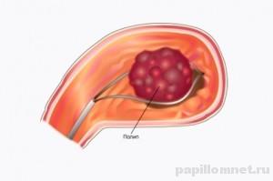 Схема удаления полипа в желудке