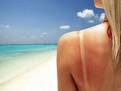 Солнечные ожоги кожи