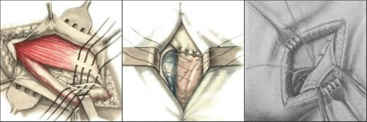 Натяжная герниопластика паховой грыжи