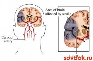 повреждение мозга при онмк