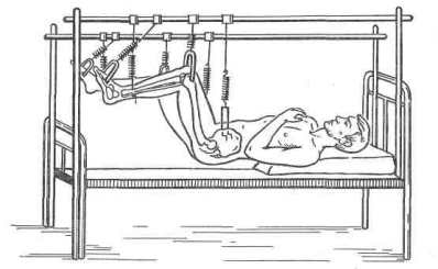 Скелетное   «подвешивание»   при   повреждении   спинного мозга