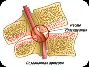 сдавленная позвоночная артерия