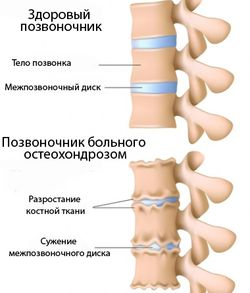 позвоночник нормальный  и больной остеохондрозом