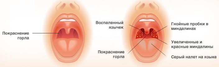 Повторная ангина после антибиотиков