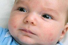 Проблемы кожи лица новорожденного