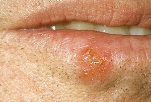 простуда на нижней губе