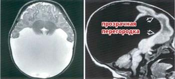 Прозрачная перегородка головного мозга