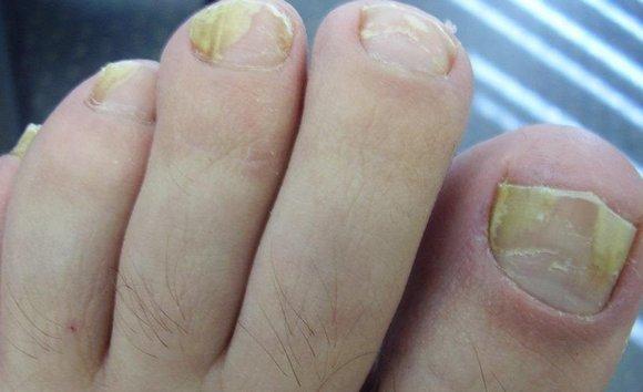 на ногтях болезнь