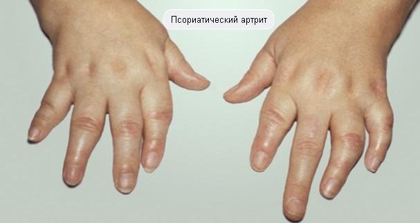 картинка артрита псориатического