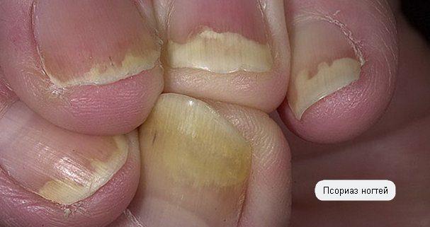 фото псориатических ногтей на руках