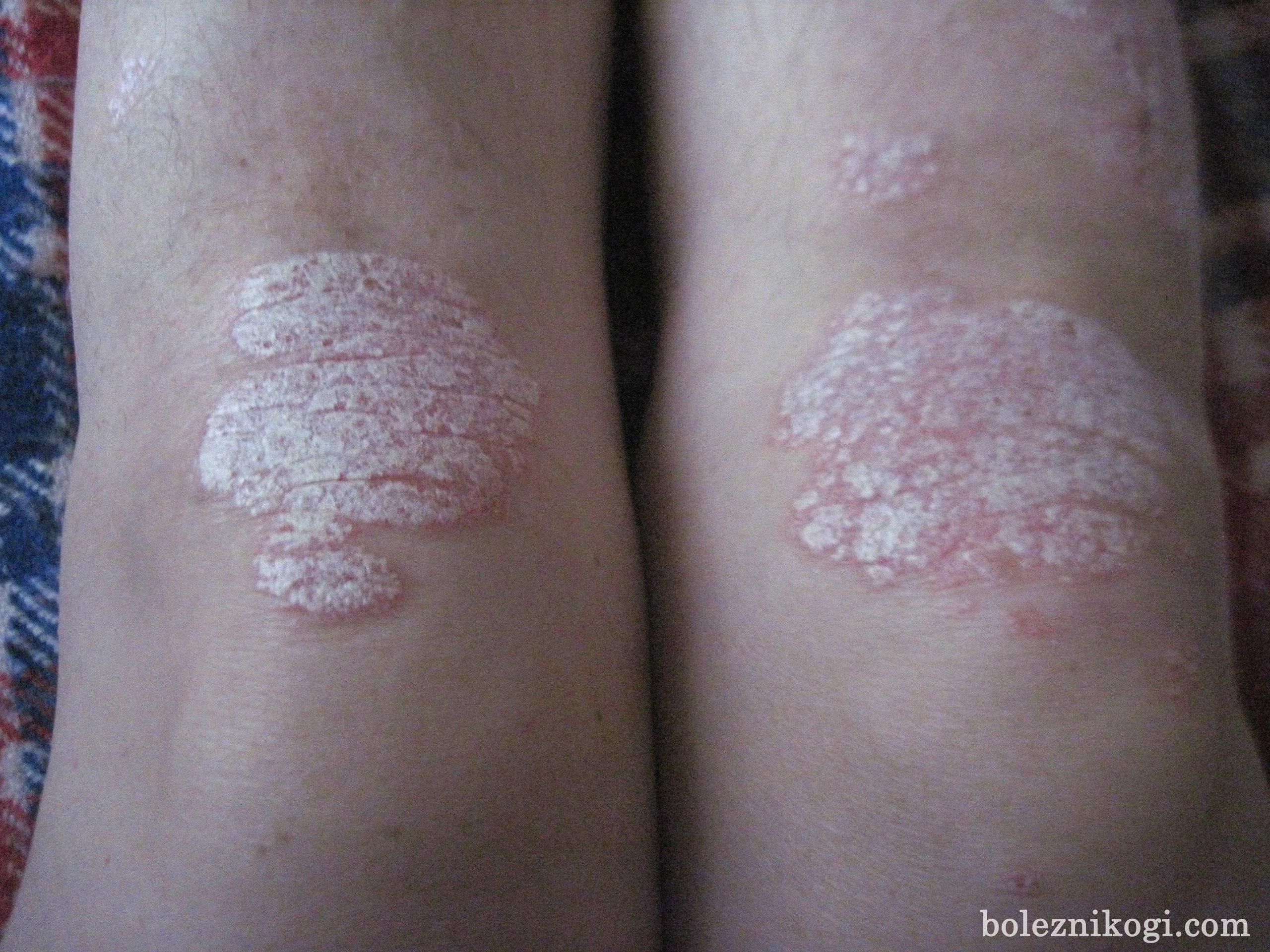 фото псориаза на коленях