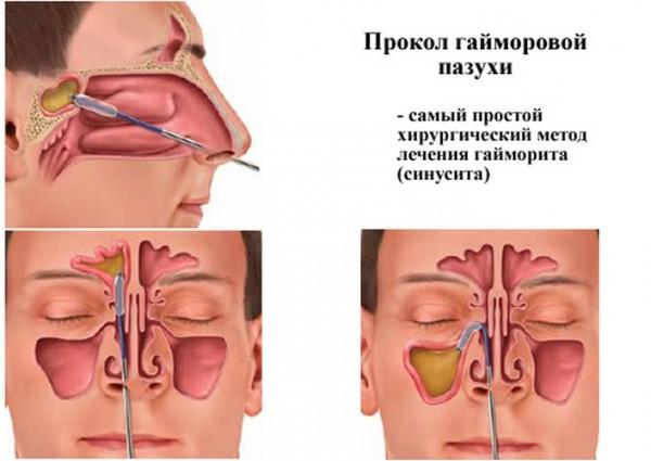 Пункция придаточных пазух носа
