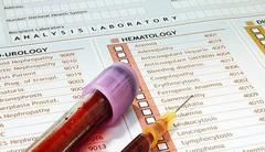 Расшифровка анализа крови для женщин