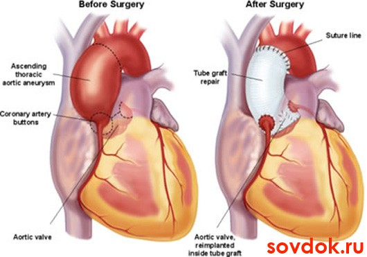 расширение корня аорты и состояние после операции