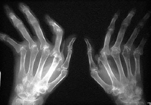 Ревматоидный артрит на рентгеном снимке