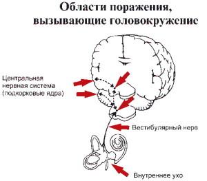 как возникает головокружение