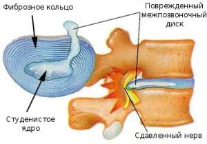 как появляется остеохондроз