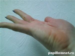 Фото родинки на указательном пальце руки