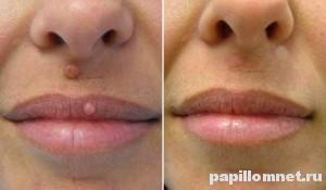 До и после удалния родинки на лице